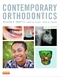 Contemporary Orthodontics